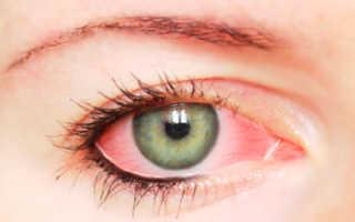 Что делать, если болят глаза после наращивания ресниц??
