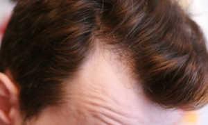 Как отрастить новые волосы после выпадения народные средства