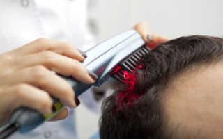 Рейтинг лучших лазерных расчесок для укрепления и роста волос