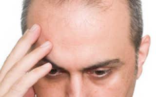 Что делать лысеет голова. Причины и лечение облысения в области макушки у мужчин